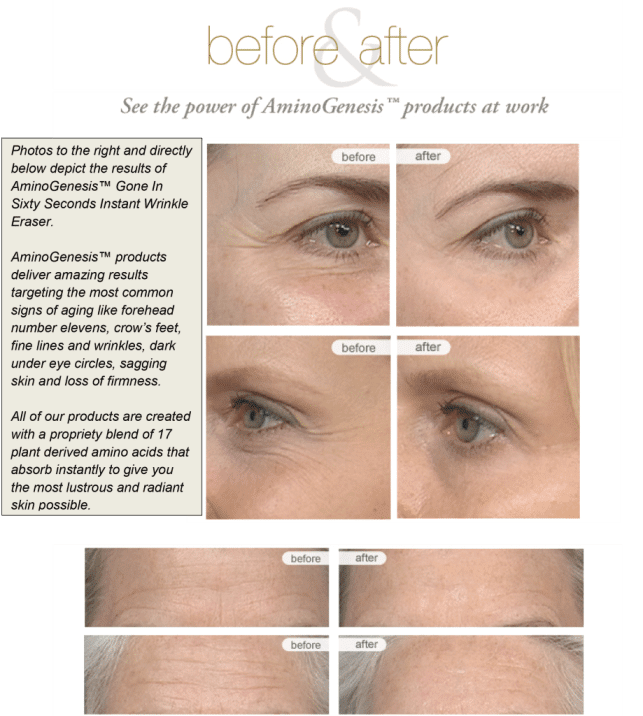 See the power of AminoGenesis products at work - before and after pictures -  the wrinkles are gone!