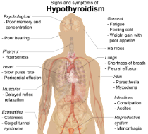 Signs_and_symptoms_of_hypothyroidism